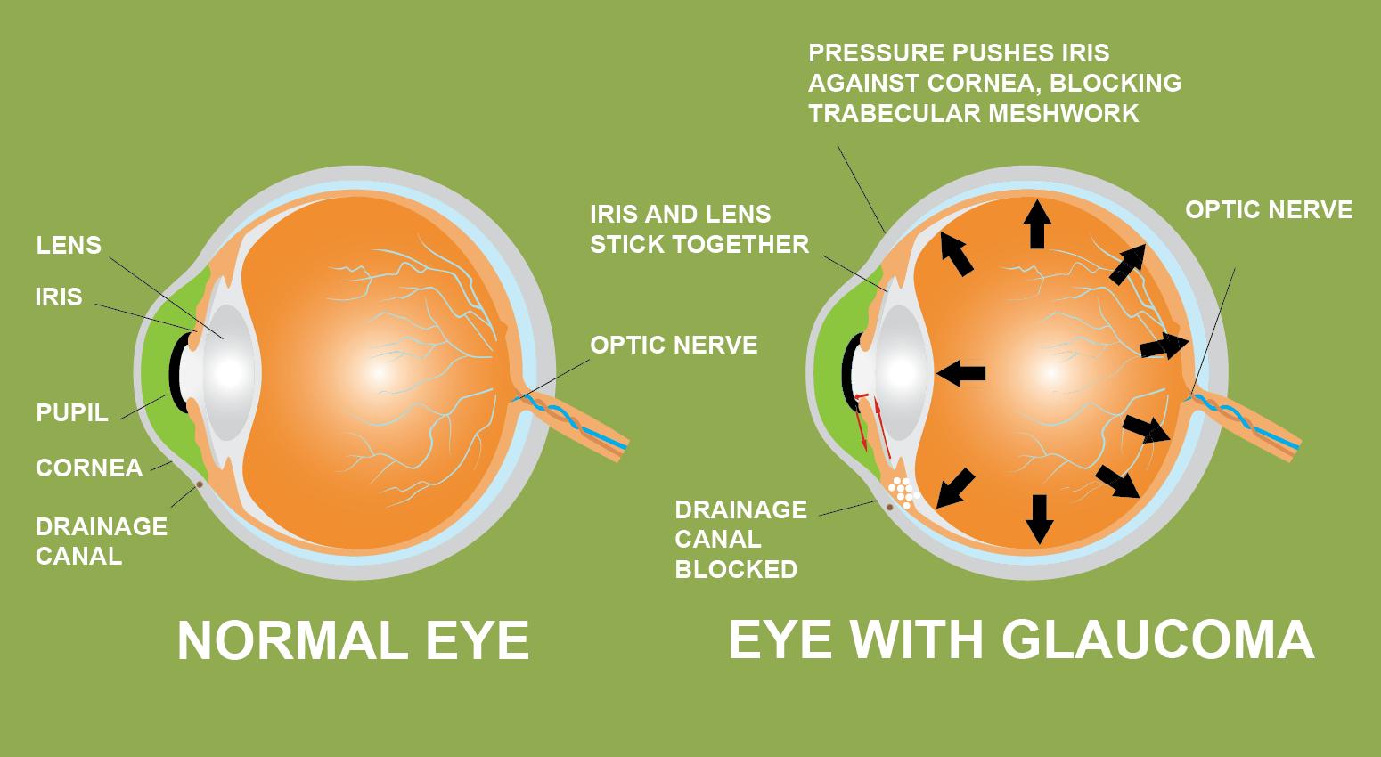 Glaucome iris lentille pupille cornée canal de drainage cannabis prévention
