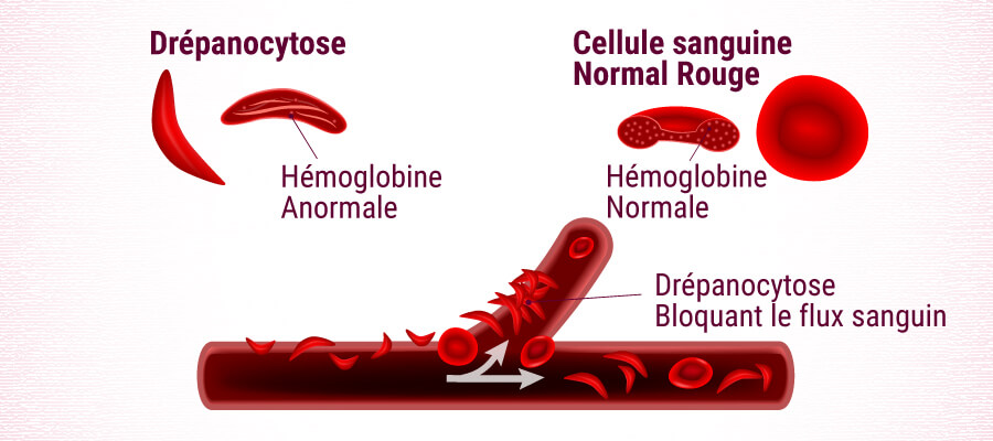 Drépanocytose Blood Cell
