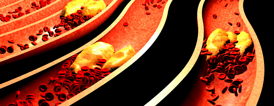 Tension artérielle des cellules cardiaques