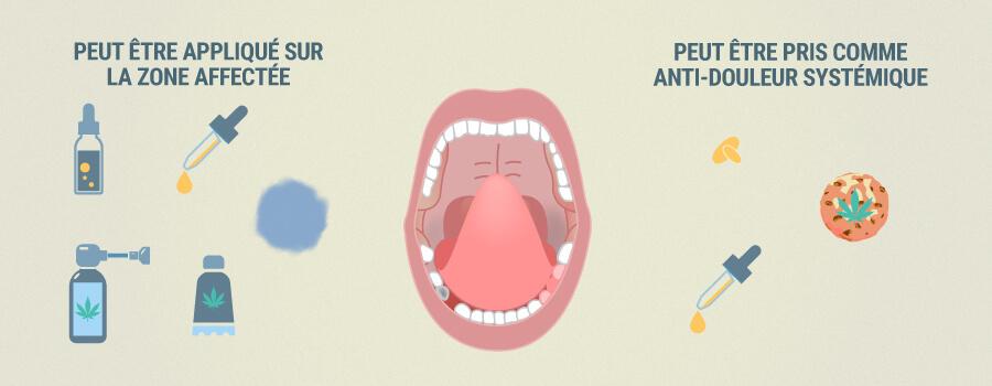 Comment La Cdb Peut Aider À Soulager Les Dents