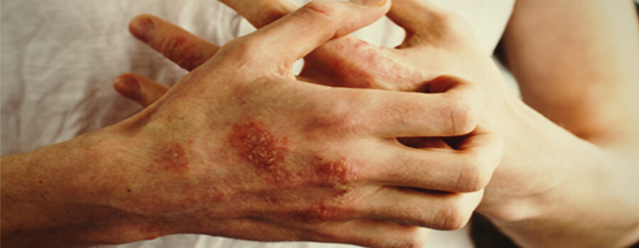 Eczéma et allergies