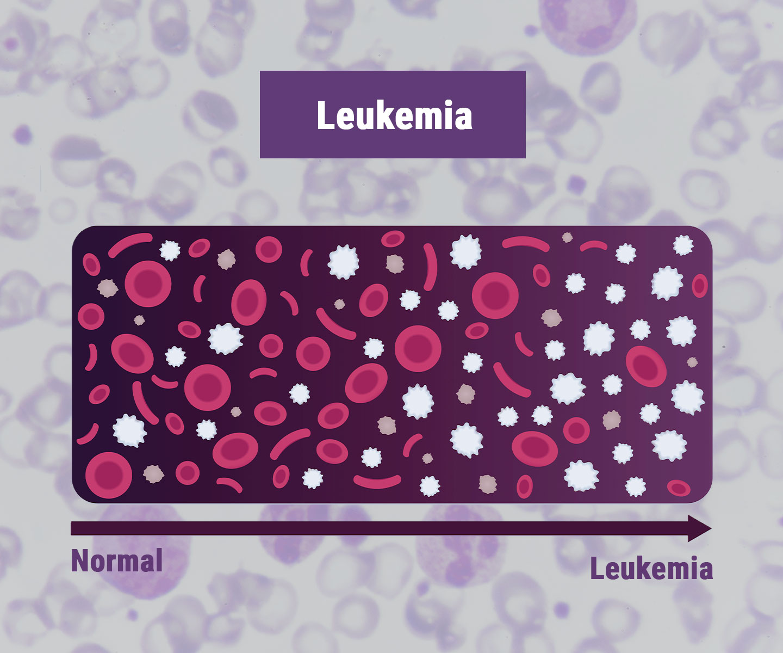 Leucémie