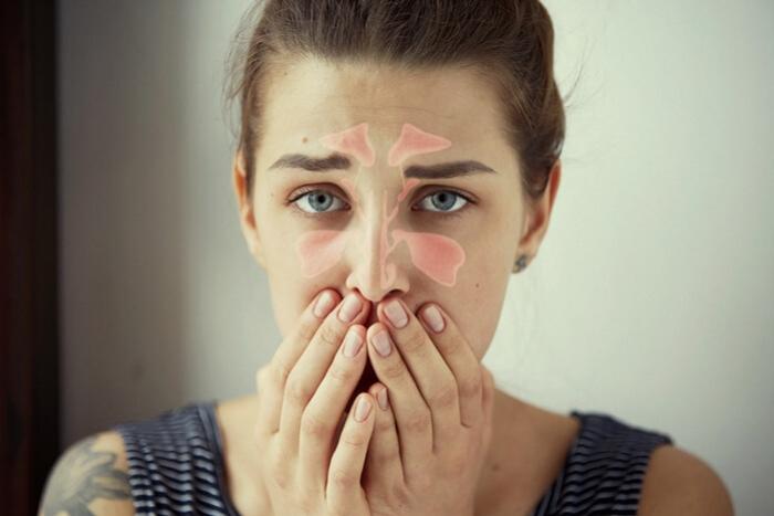 """Résultat de recherche d'images pour """"sinusite"""""""
